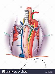Bronchial Artery Stock Photos  U0026 Bronchial Artery Stock