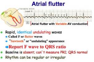 Flutter vs Atrial Fibrillation
