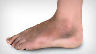 Swollen Foot and Ankle