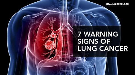 warning signs  lung cancer    ignore