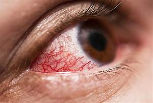 Episcleritis Symptoms and Treatments