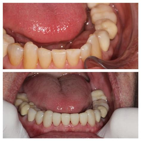 There may be various reasons why you would have a need to verify health insurance. Dentist Hermitage PA   What are veneers?   Dental Veneers