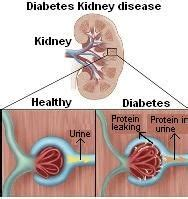 images  diabetes  pinterest glucose