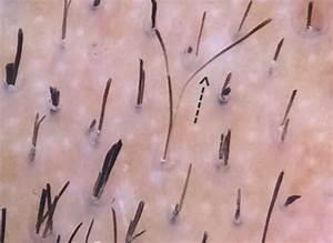 Trichoscopy In Hair Loss