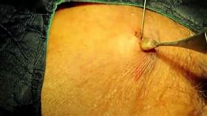Sebaceous Cyst Of Scrotum