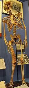 Joseph Merrick Skeleton | www.pixshark.com - Images ...