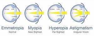 Refractive Errors Of Eyes