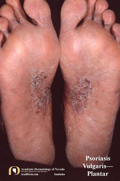 psoriasis vulgaris  basics academic dermatology