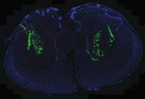 Scientists uncover master key in development of Huntington ...