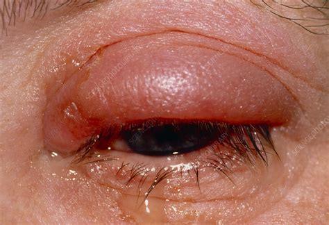 swollen red eye  conjunctivitis stock image