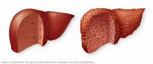 ... . In cirrhosis (right), scar tissue replaces normal liver tissue  Hepatitis Cirrhosis