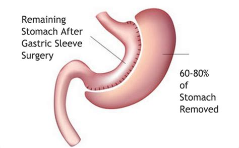 Gastric Sleeve Surgery The Fastest Growing Bariatric. Phoenix Health Services Illinois Tax Attorney. Average Internet Upload Speed. Bankruptcy Lawyers Portland Oregon. Foreign Medical Schools Colleges In Spring Tx. Finance Management Software Share Word Doc. Online Developer Training Dish Network Tacoma. Criminal Justice Bachelors Degree Schools. Garage Doors Repair Cost Goldman Sachs Review
