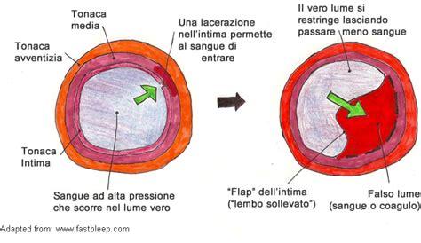 aneurisma carotide interna dissezione aortica