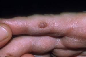 Nhg psoriasis