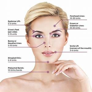Common Areas For Botox Injection And Appropriate Units Per