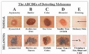 How To Detect Melanoma Source The Skin Cancer Foundation
