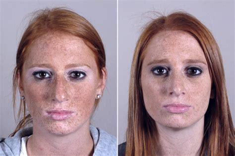 What Can Nose Surgery Fix?  Parker Center For Plastic Surgery