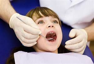 Dental sealants for kids: What parents need to know to ...