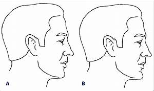 Two Different Types Of Chin  Normally Prominent  A  Or