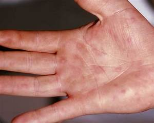 Urticaria - Causes, Symptoms, Treatment, Home Remedies Painful periods