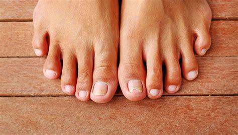 pied de le huile essentielle contre la mycose de l ongle du pied