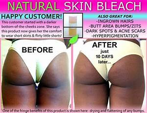 Natural Skin Bleaching for African Americans for Private ...