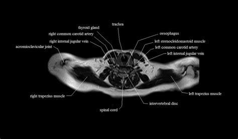 Chest Anatomy  Mri Chest (thorax)axial Anatomy Free