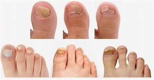 Препарат от грибка ногтей на ногах отзывы