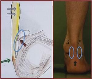 Ppt - anatomie in vivo het bewegingsapparaat