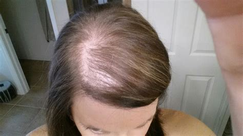 postpartum hair loss how long does it how not to go bald like january jones when you39re a bottle blonde with th of 29 model hair