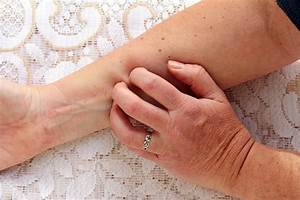 How Do You Get Shingles? Understanding the Causes ...