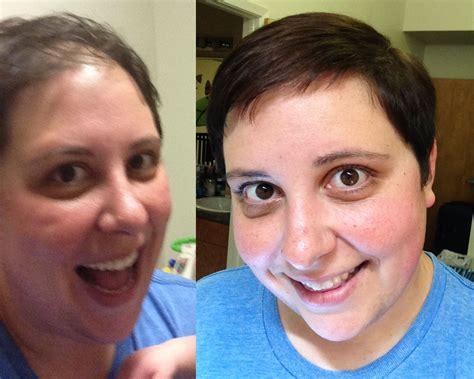 Hair Loss Shampoo Hair Loss Shampoo Pcos