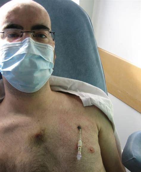 chambre pour chimio catheter adios se battre contre la leucemie par marco