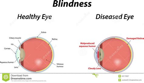 complete color blindness blindness all you need to steemit