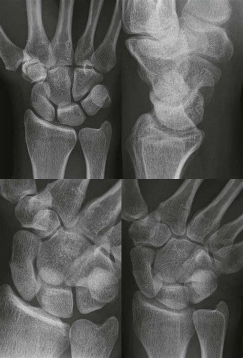 wrist distal forearm radiology key