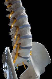 Transforaminal Lumbar Interbody Fusion  Tlif   Advantages