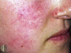 34 best images about KP Keratosis Pilaris on Pinterest ...