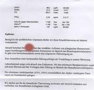Mittel Gegen Holzwurm Test : hausmittel gegen akne haarausfall und spliss kokos l leileistyle ~ Whattoseeinmadrid.com Haus und Dekorationen