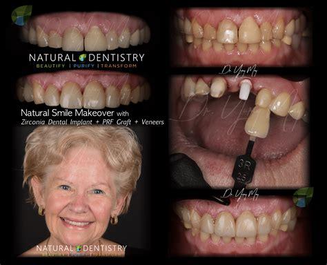 smile implant veneers zirconia makeover dental before cosmetic dentist