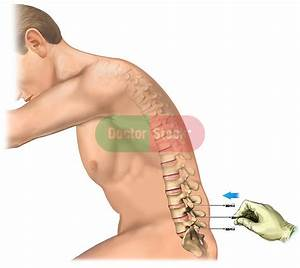 Needle Insertion Into The Low Back