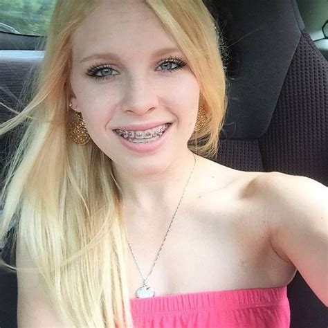 Very Young Teen Braces Fucking