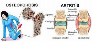 Eating Right for Foot Health - Foot Therapy  Osteoporosis Bone Health