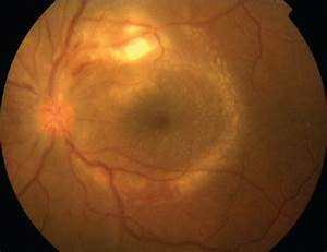 Color fundus photograph of the left eye of a patient wi ...