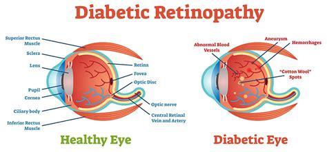 halting diabetic retinopathy  diabetic patients