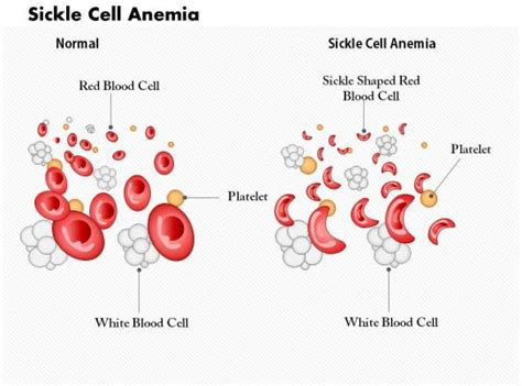 sickle cell anemia medical images  powerpoint