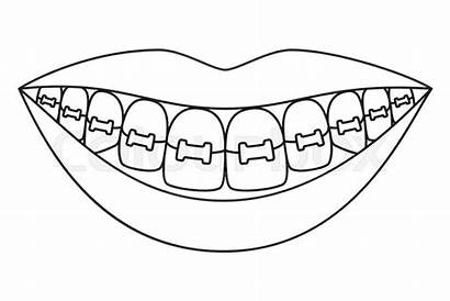 Braces Smile Teeth Line Healthy Coloring Sain