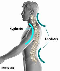 Free For Health: Lordosis Causes and Solutions