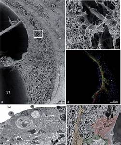 Lateral Wall And Stria Vascularis In Humans   A  Sem    Image Shows The