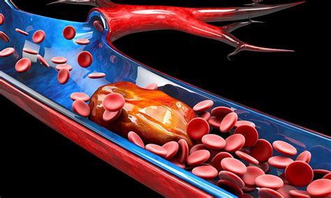 guidelines   thrombosis  haemostasis society