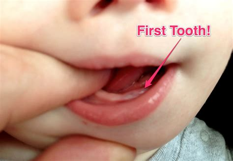 Milestone Alert Our Babys First Tooth
